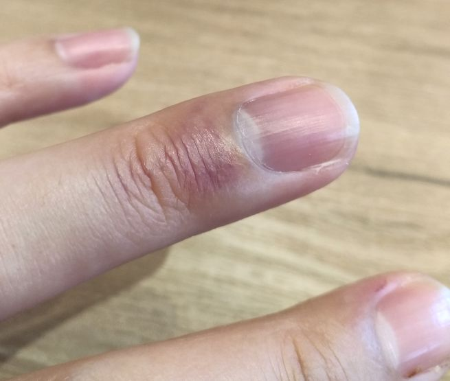 腫れ 内出血 指 だ 挟ん